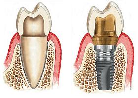 Implantarea dinţilor