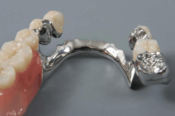 Proteză arcată (metoda protezării detașabile)